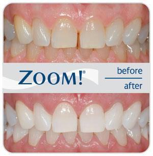 ДО и ПОСЛЕ - Отбеливание зубов Zoom 3